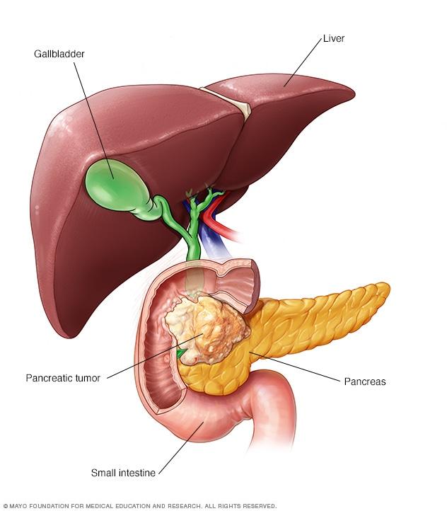 cancer de pancreas curable)