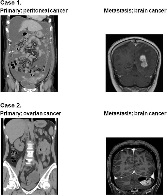 peritoneal cancer brain metastases