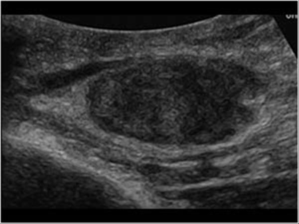 hodgkins cancer icd 10 gastric cancer vagotomy