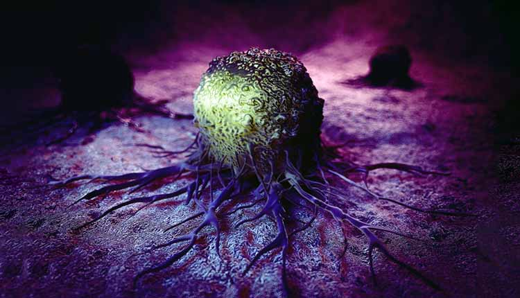 que es cancer invasivo human papillomavirus infection locations