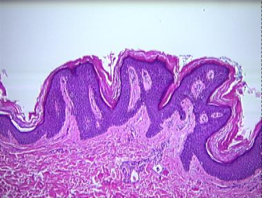 skin papillomatosis histology)