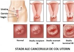 cancerul de col uterin stadii)