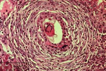 schistosomiasis granuloma