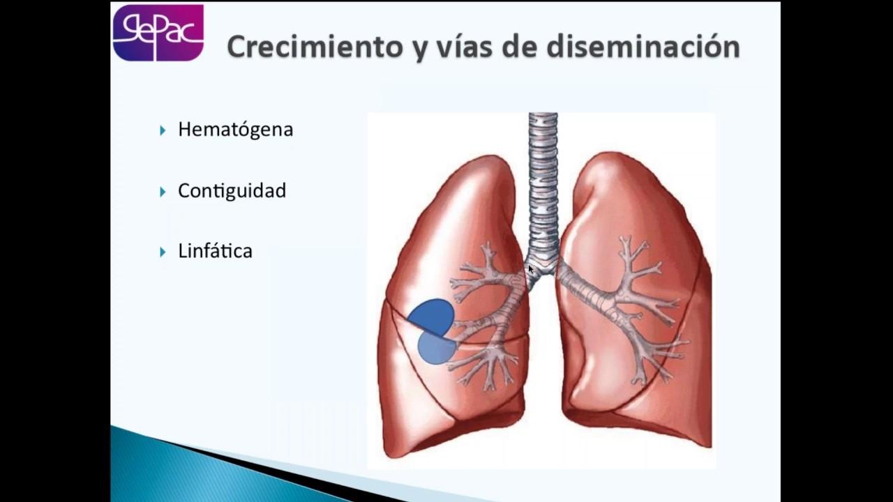 Broncograma aéreo | Radiology, Human body anatomy, Body anatomy