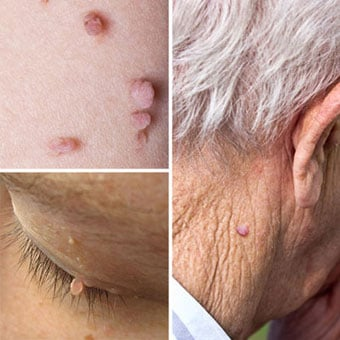 is a papilloma a skin tag)
