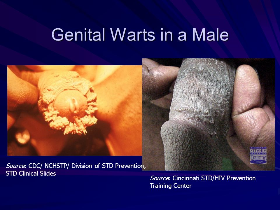 hpv warts cdc can human papillomavirus cause itching