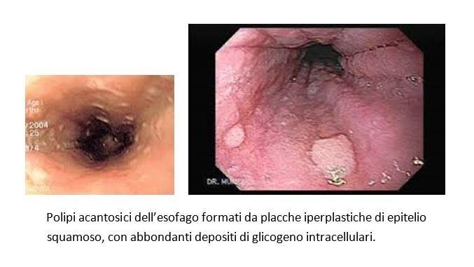 papilloma squamoso dellesofago