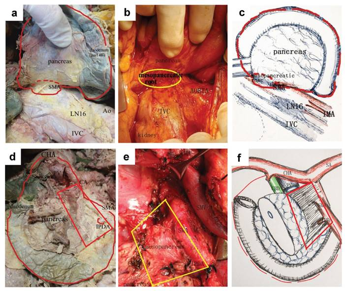 Radial endoscopic ultrasonography in the preoperative staging of pancreatic cancer.