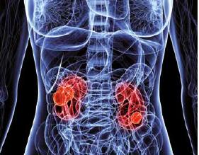 Cancer renal: simptome, cauze, tratament, prevenţie