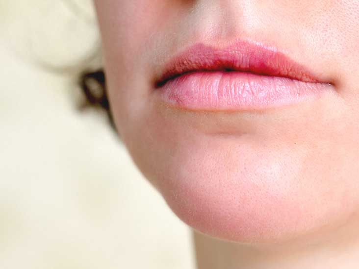 hpv warts lips pictures)