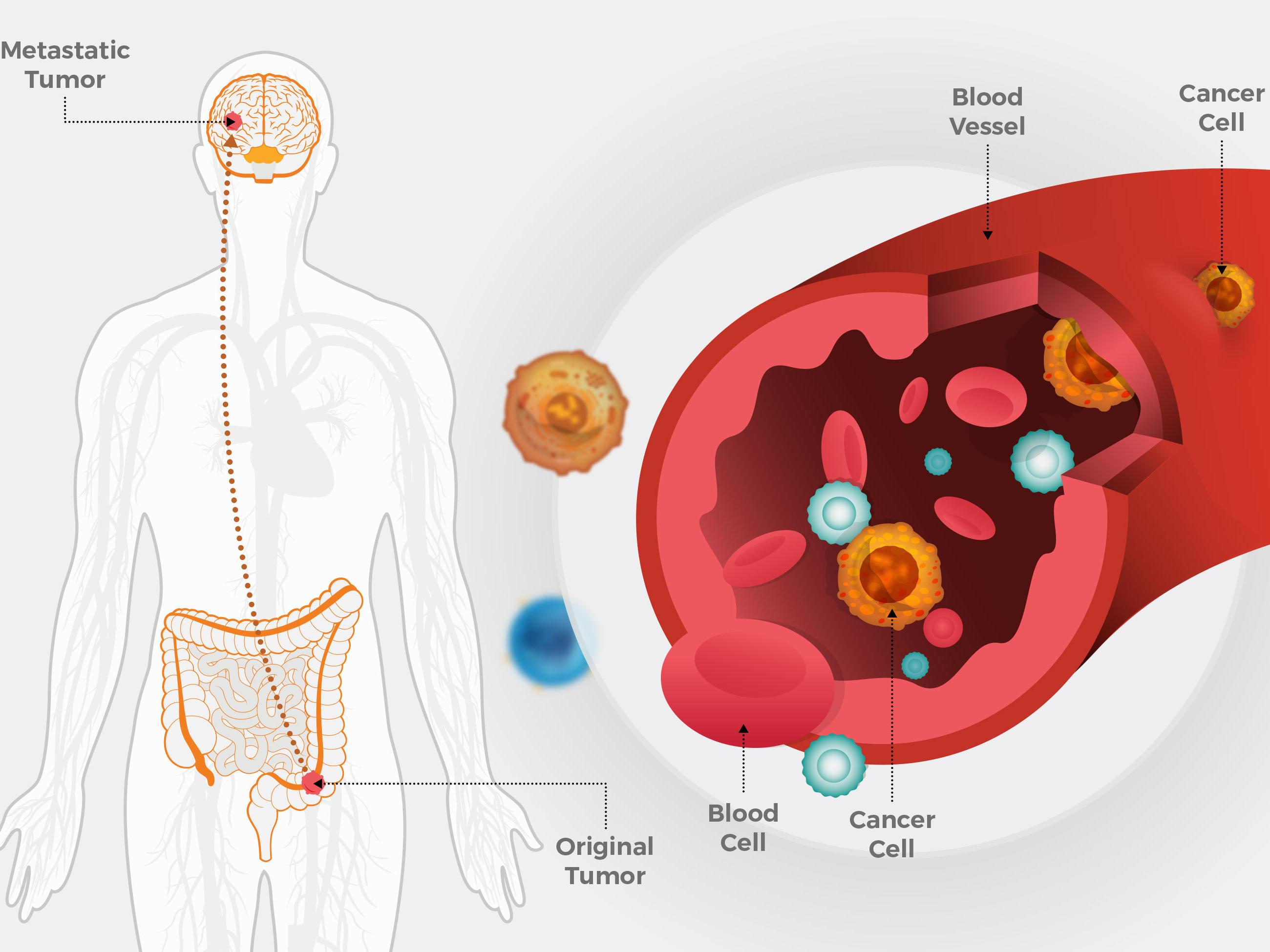 metastatic cancer - Traducere în română - exemple în engleză   Reverso Context