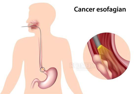 cancerul pulmonar fumatul