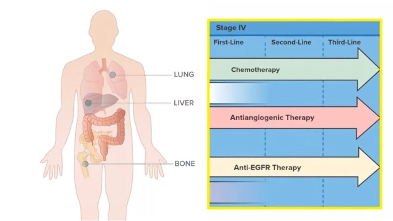 colorectal cancer with bone metastasis