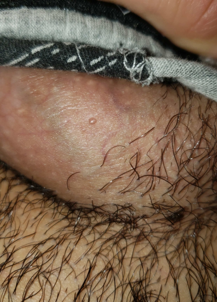 hpv related genital warts