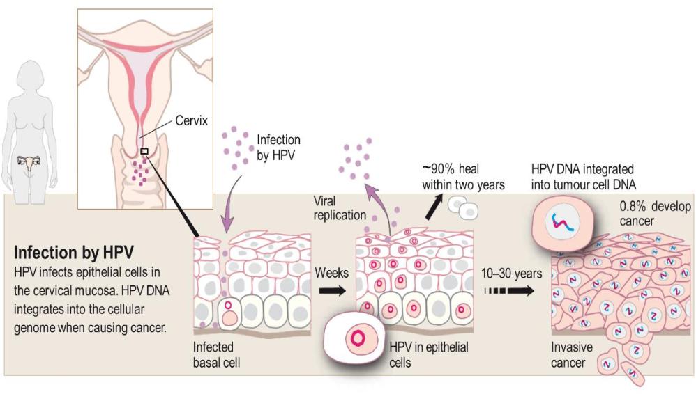 hpv causes cervix papillomatosis florida oris