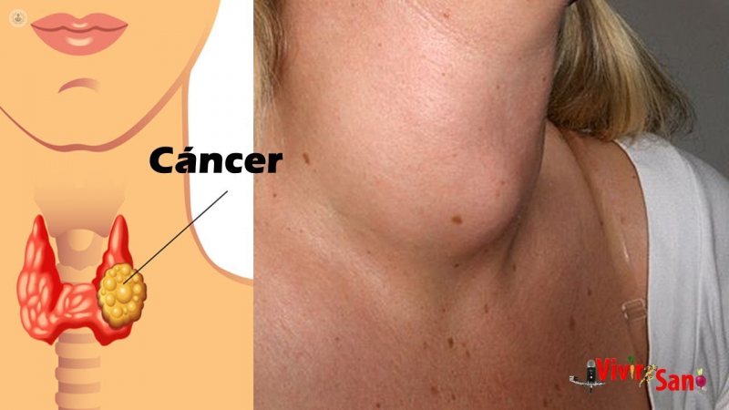 cancer laringe pronostico)