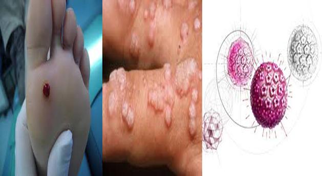 virus del papiloma humano y condon)