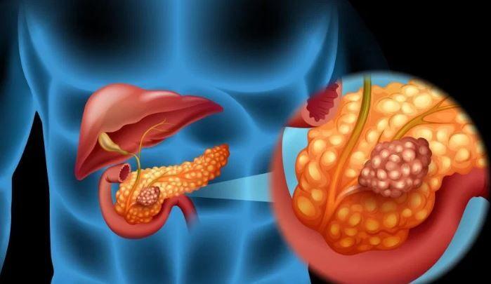 cancer de pancreas rata de supravietuire