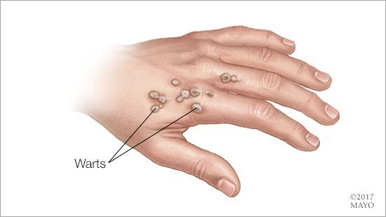 warts on hands suddenly)