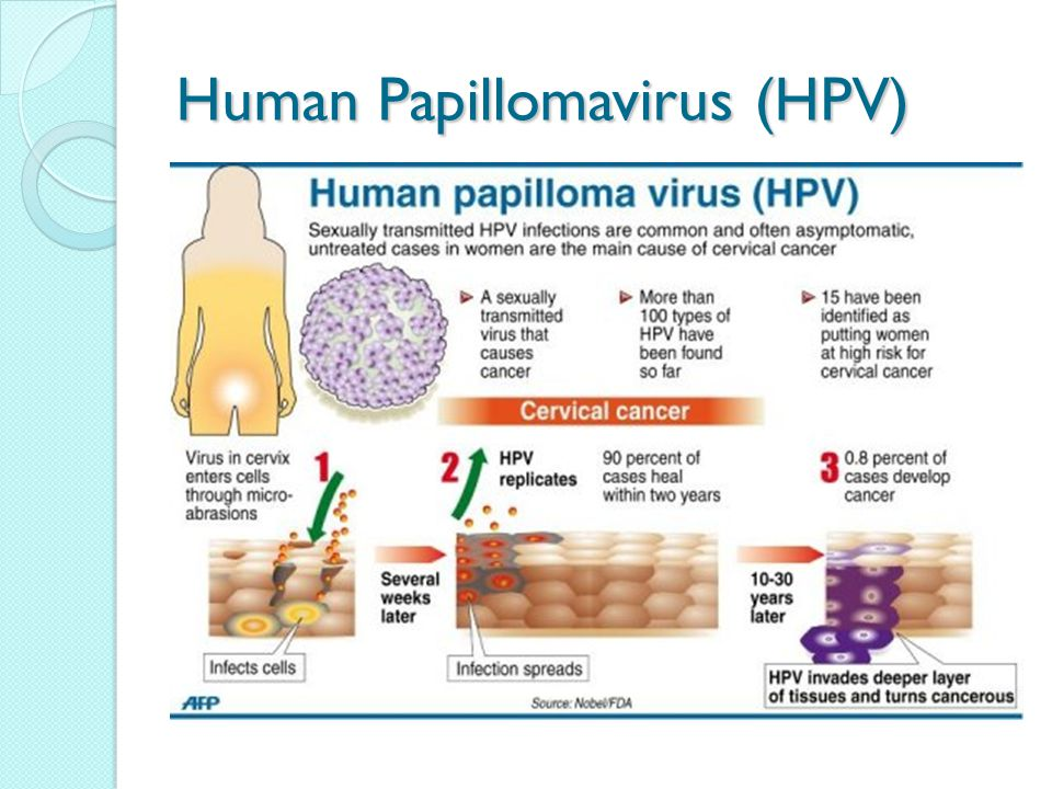 can human papillomavirus cause cervical cancer