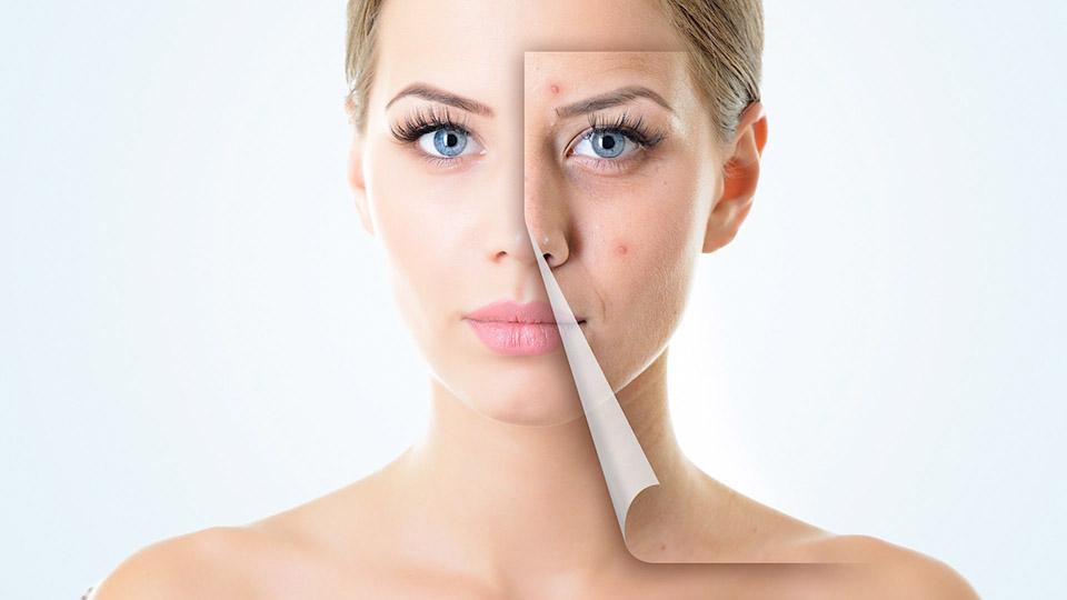Cum au scăpat vedetele de acnee? Divele au mărturisit secretul