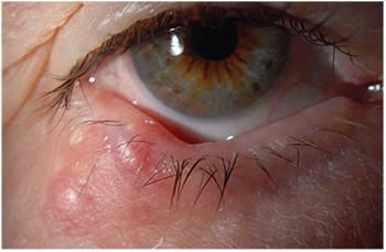 hpv red eye hx of breast papilloma icd 10