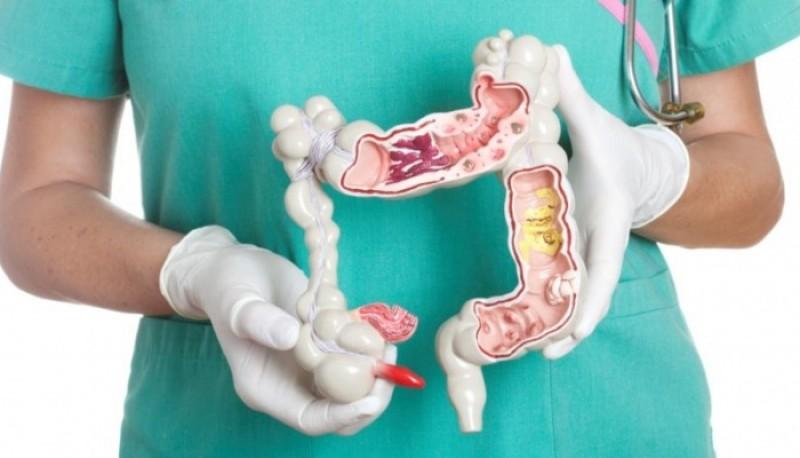 Cum poate fi depistat cancerul de colon şi care sunt primele simptome