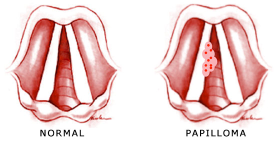 papilloma nose symptoms