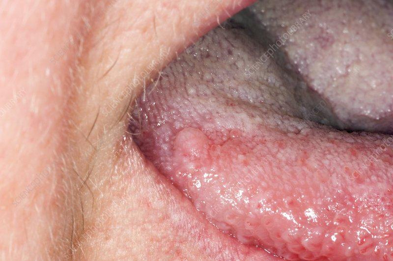 papillomas tongue warts under foot causes