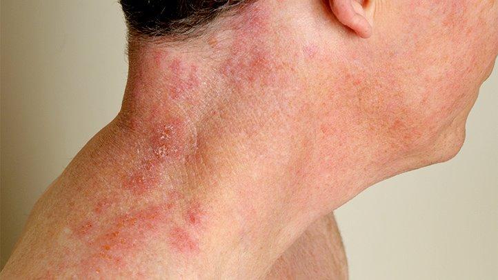 hpv zoster symptoms