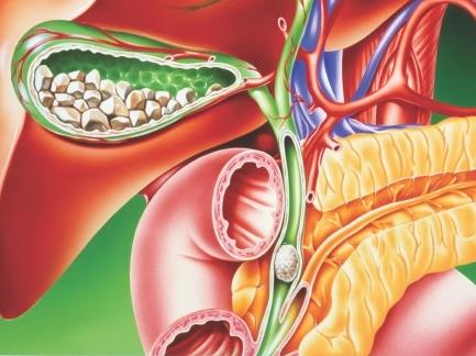 detoxifierea ficatului si a vezicii biliare