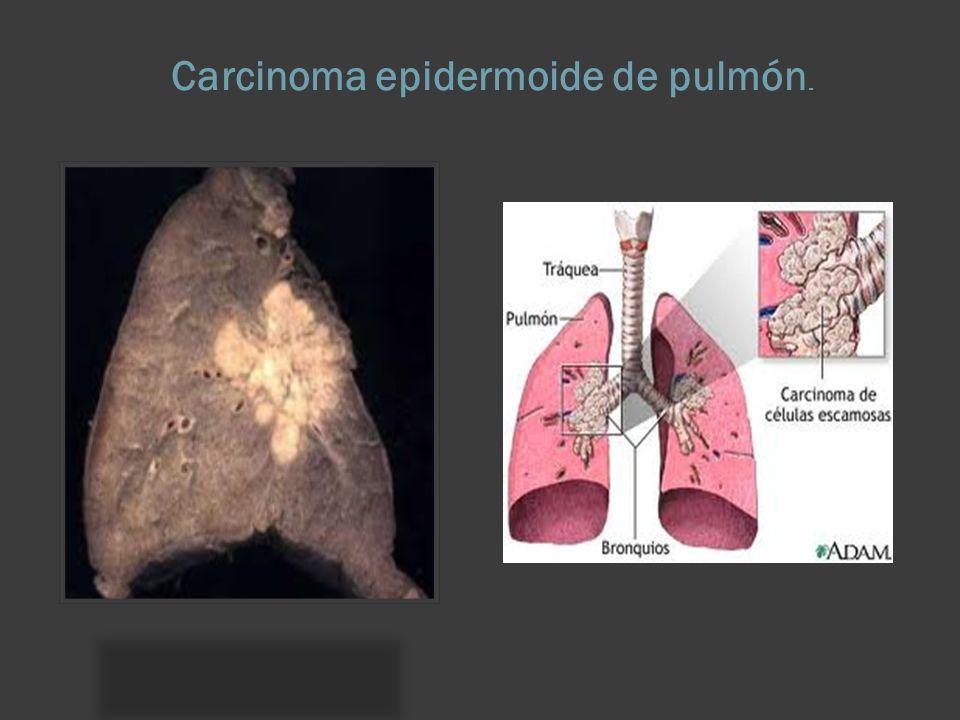 Mortal! - Cancerul pulmonar - Anadolu Medical Center