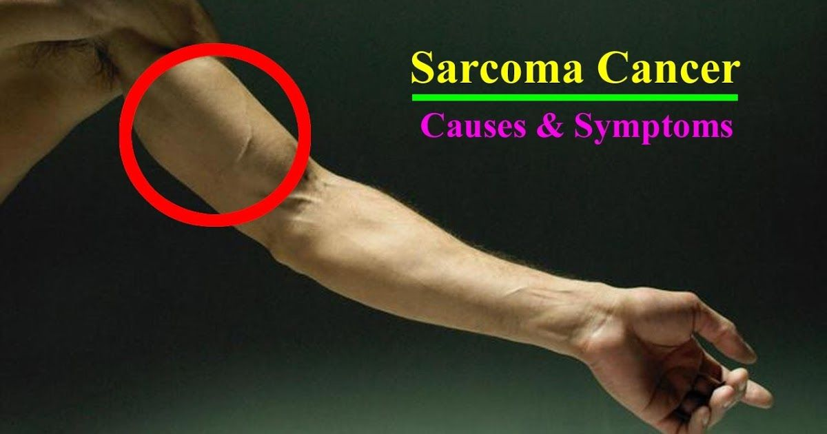 cancer sarcoma symptoms