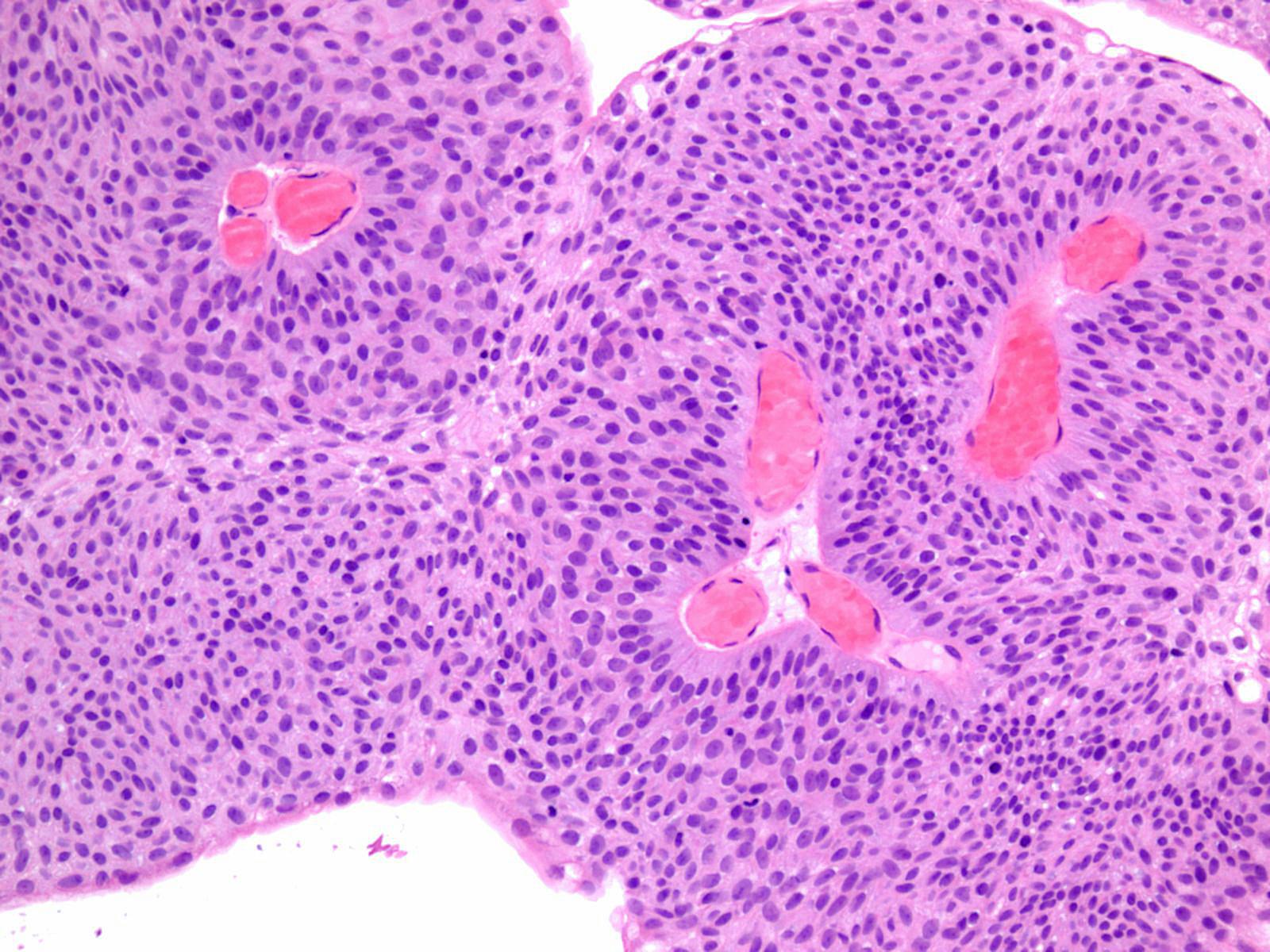 neuroendocrine cancer merkel cell enterobius vermicularis symptomen