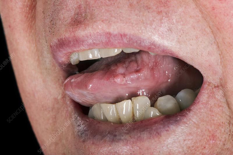 white papilloma on tongue