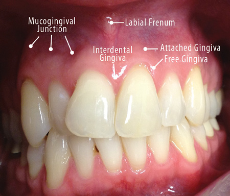 papilloma between teeth