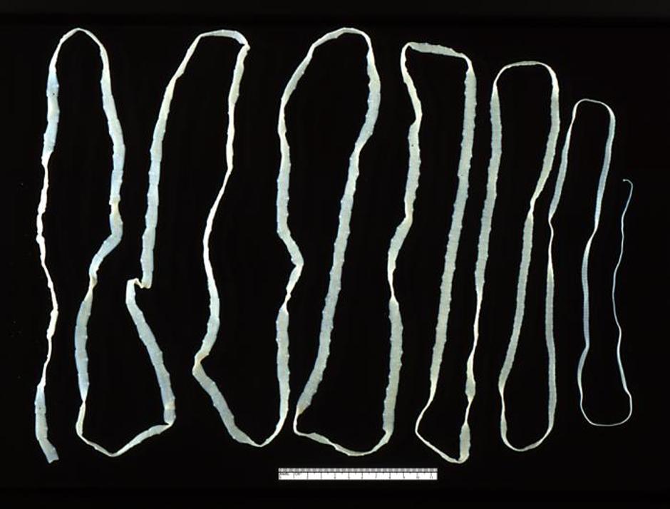 jetreni paraziti efecte detoxifiere colon