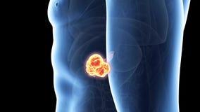 cancer pancreas medicament)