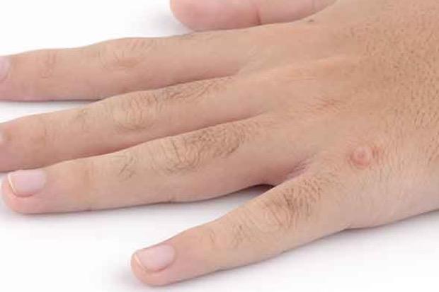 warts on your hands and feet ano ang human papilloma virus