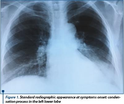 cancer pulmonar tuse