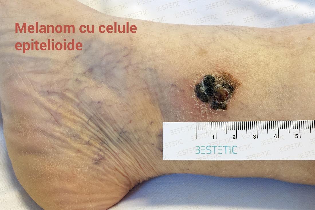 cancer piele malign)