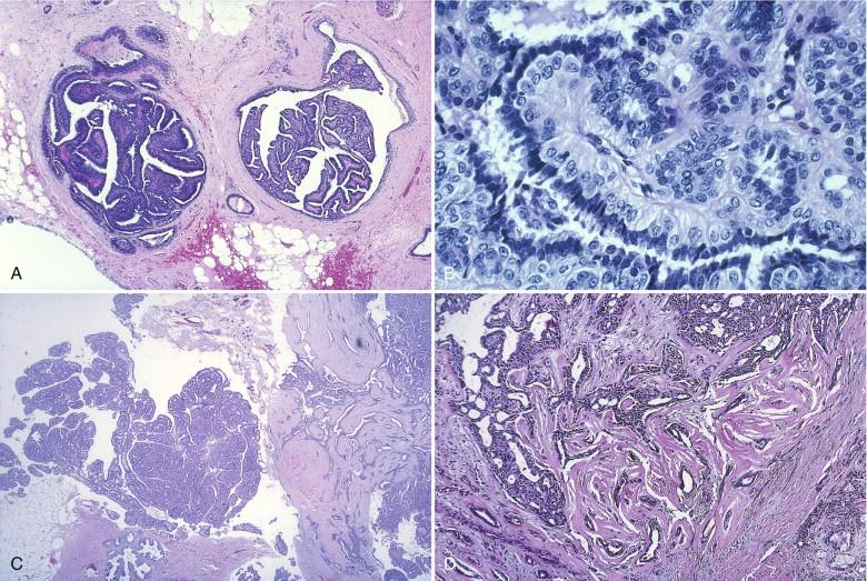 intraductal papilloma histo