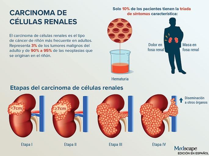 cancer renal etapa 4