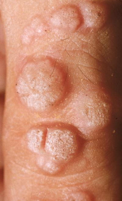 Virusul HPV: mod de transmitere şi reguli de scădere a riscului de infecţie