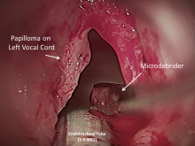 respiratory papillomatosis medical treatment