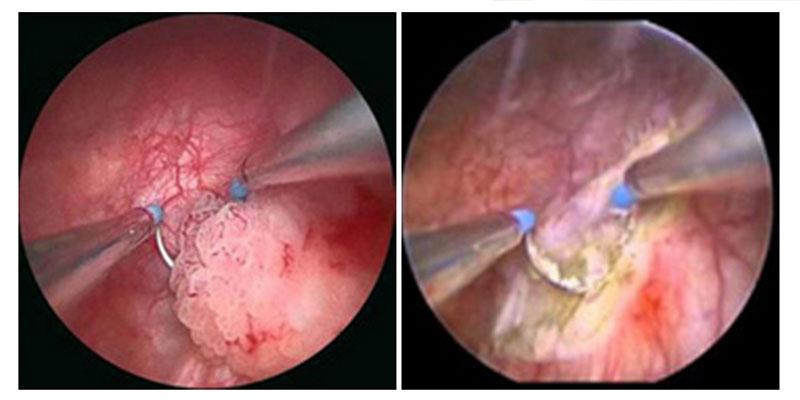 tumore papilloma alla vescica ovarian cancer hospice timeline