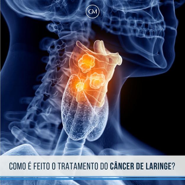 cancerul de faringe
