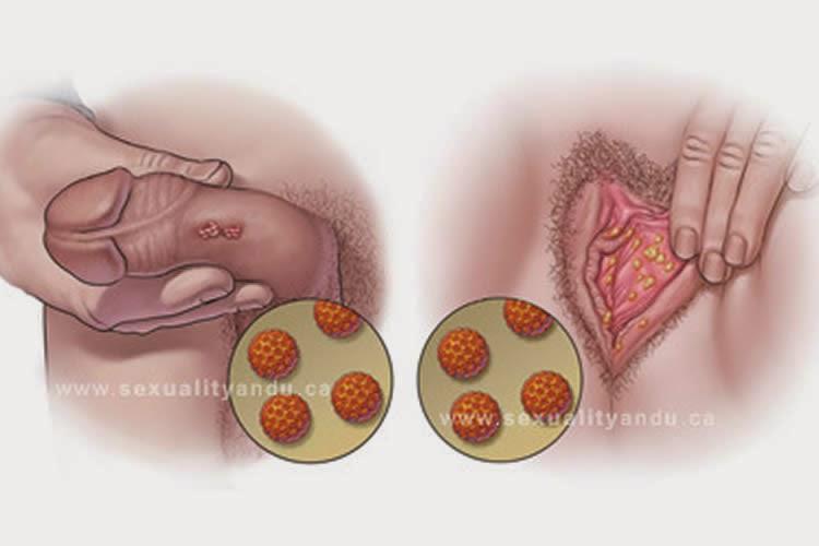 cancer de ano por papiloma)