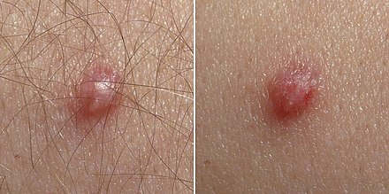 hpv high low risk types therapy for papilloma