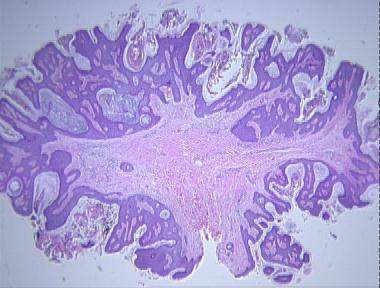 fibroepithelial papillomas)